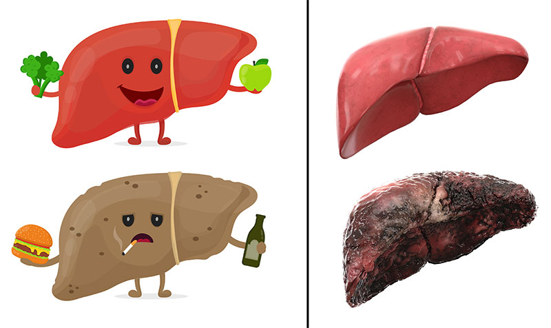Healthy Liver Foods and Toxic Hepatitis Cirrhosis